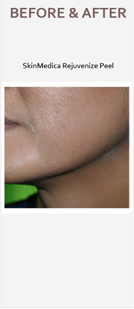 chemical-peel1